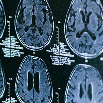 Enquête nationale sur la connaissance des troubles cognitifs